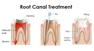 Root Canal Treatment at Arora'