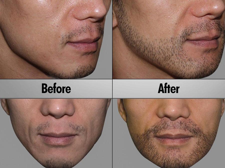 Beard &Mustache Transplantation
