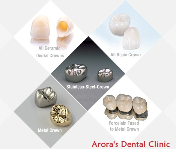 They have a metal base and layered by Porcelain/ Ceramic . Capping done at Arora's Dental Clinic will last very long  as its done by a Prosthodontist - a specialist in Dental Crowns.