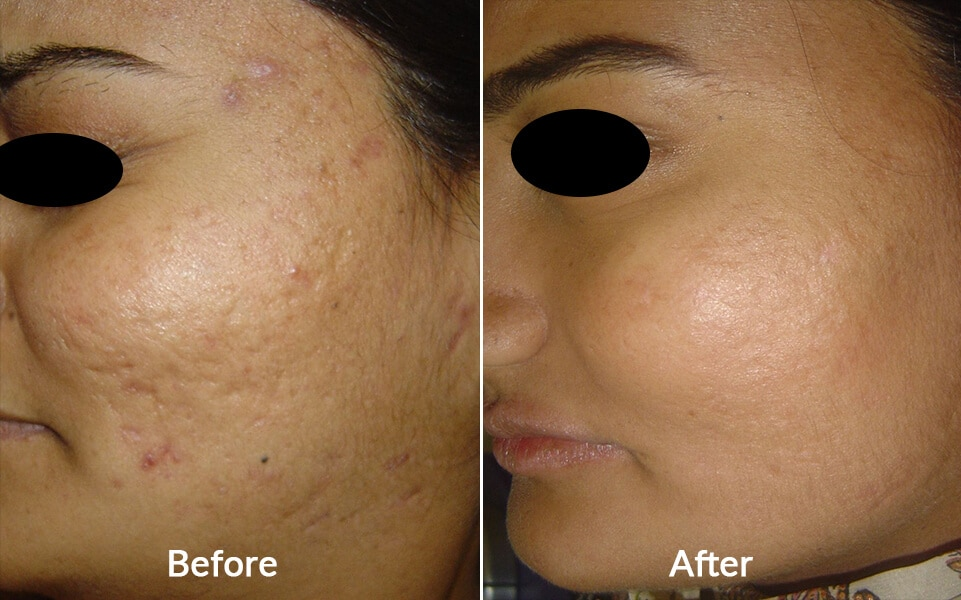 Acne commonly known