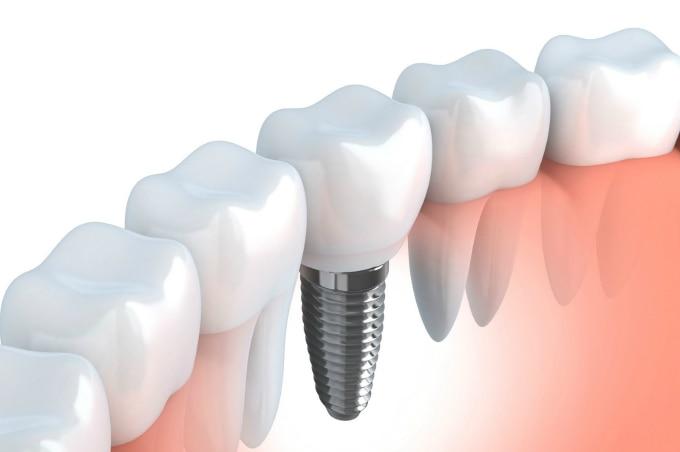 We Dentcure Detal Cl