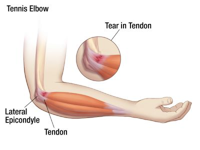 Tennis elbow is a cl