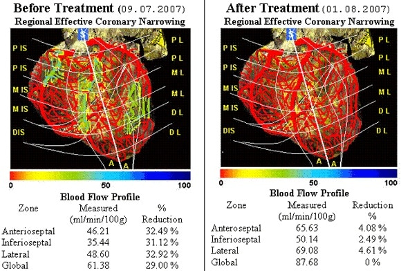 Heart Flow Mapping With Cardiovascular Cartography (Ccg)