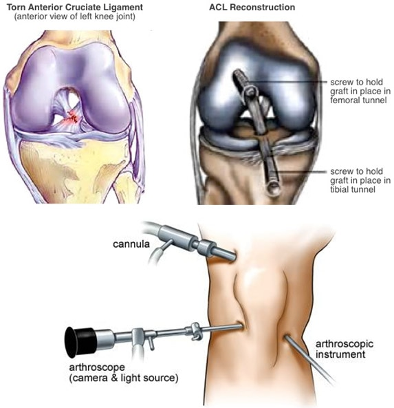 The term knee recons