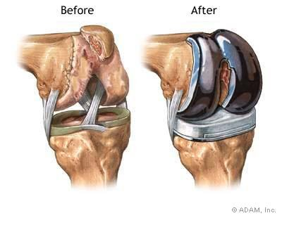 Knee replacement is