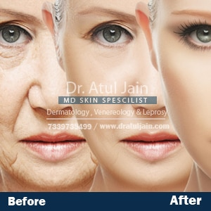 Fine Lines and Wrinkles are the skin disorders that may arise due to aging, too much exposure in the Sun, Stress and Pollution. Carrying years of experience, Dr. Atul Jain suggests various ways to treat the wrinkles.  All the remedies will depend on the depth and the location of the wrinkle on the body. Mild lines of wrinkles can be treated by consuming food that is rich in Vitamin C and regularly applying Sun Screen Lotion. For the severe illness, he recommends Laser therapy treatment.