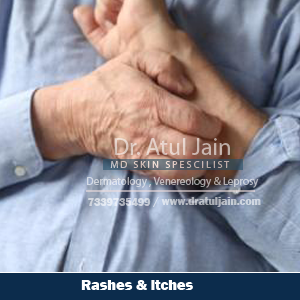 Rash and Itching is a common skin disease that may occur in the damp climate or on the body parts that remain damp. The disease can happen to people of any age. If your condition is severe and recurrent, you can refer to Dr Atul Jain for further advice.  Itching may also occur due to some medication you might be taking. Maintaining hygiene level is also important. Use dry and clean clothes to wipe and wear. There are several ointments available in the market that can give you instant relief. But this does not solve your purpose, so consult him.