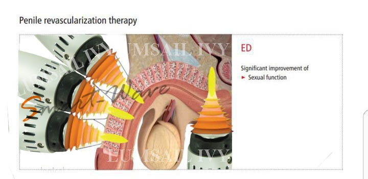 Low Intensity Shock Wave Therapy for Erectile Dysfunction and Premature Ejaculation is Consider First line of Treatment at US, UK. It help in Penile Revascularization. It is pain free,short treatment with no reported side effects.Treatment Protocol: Frequency:5-10 Hz, Energy :10 mj,Number of shots:500-800 per time, Number of Treatment-4-8 Treatment frequency-1-2 per week and can be Repeated after 6 moth- 1 year if needed.	 1 Session-3500 4 session-12000 8 session-20000