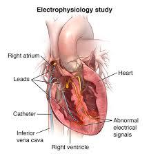 Cardiac Resynchroniz