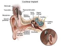 A cochlear implant (CI) is a surgically implanted electronic device that provides a sense of sound to a person who is profoundly deaf or severely hard of hearing in both ears; as of 2014 they had been used experimentally in some people who had acquired deafness in one ear after learning how to speak. Cochlear implants bypass the normal hearing process; they have a sound processor that resides on the outside of the skin (and generally worn behind the ear) which contains microphones, electronics, battery, and a coil which transmits a signal to the implant.