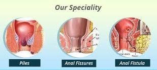 Our Hospital is one of the pioneer hospitals in Jaipur for the Piles Treatment . We have all ultra modern treatment facilities for all ano-rectal conditions like Piles (Hemorrhoids), Fissure in ano, Fistula in ano, pilonidal sinus, rectal polyps, pruritus ani, perianal abscess and other ano rectal diseases. With over 38 years in Minimal Invasive treatment.