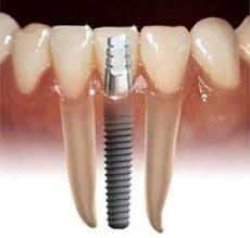 In Dental Care Centr