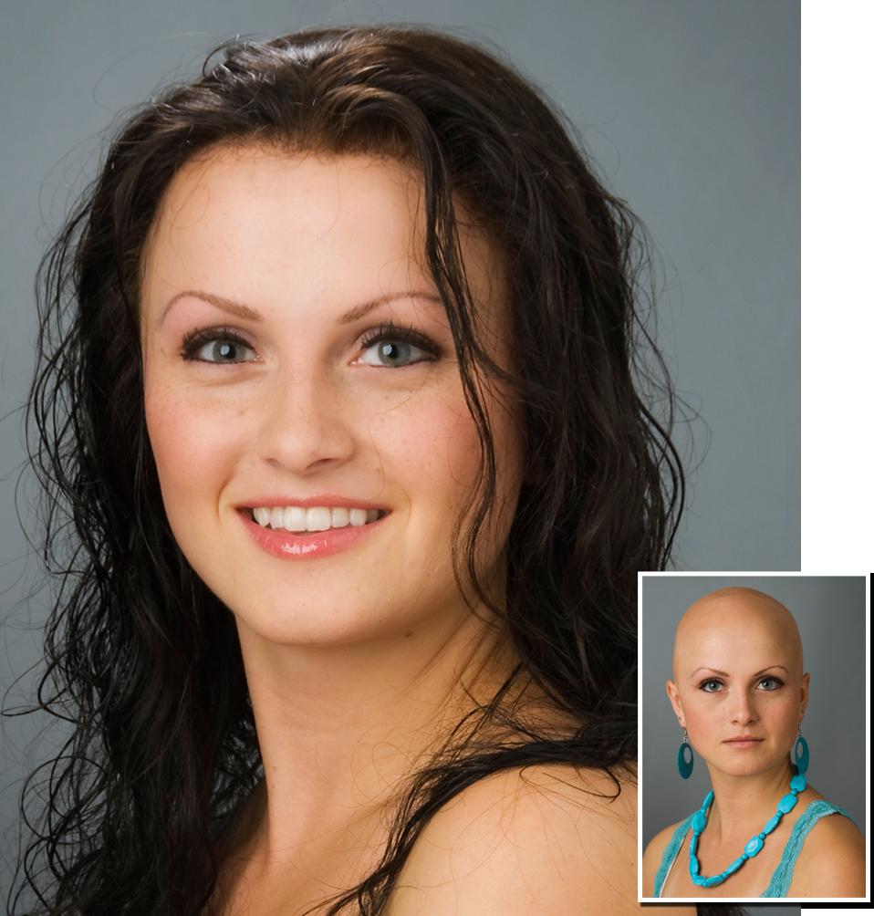 A real hair loss sol