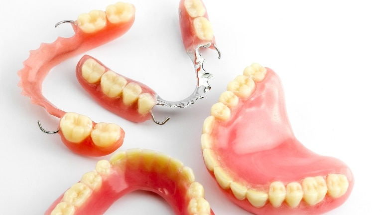 denture are prosthesis for replacement of lost teeth and gums. it can removable or fixed by implants also replace a single tooth or complete arch.