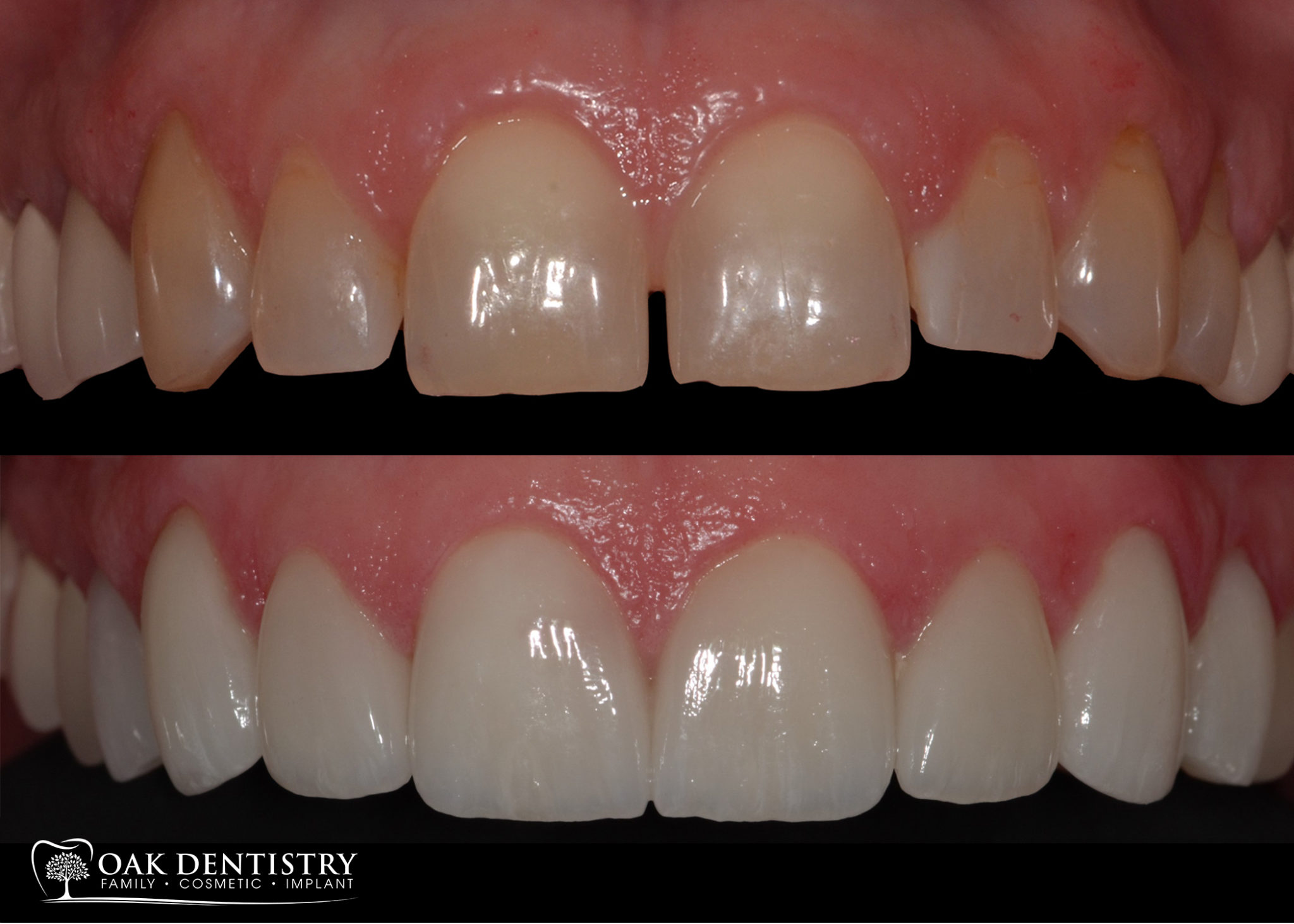 Porcelain Veeners | Dr  Kapur's Crowns and Canals Dental 08071264217