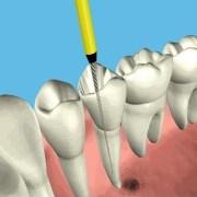 Doctors- Endodontics(Root Canal Treatment)