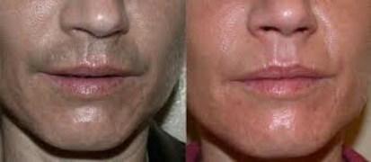 upper lip laser hair remo