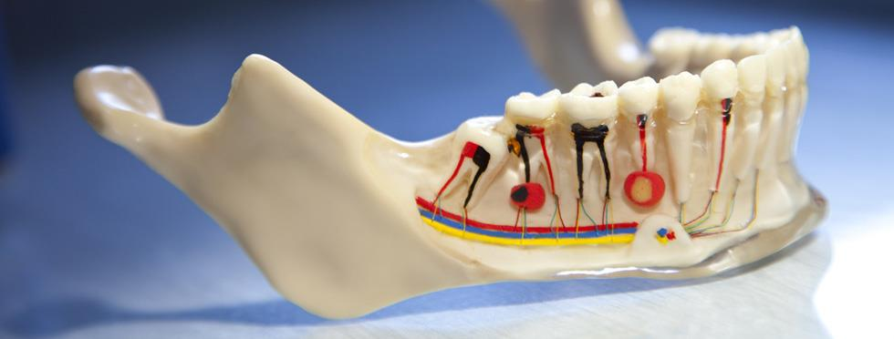 Root Canal Treatment ( Wisdom Tooth )