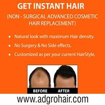 Instant Cosmetic Hair Replacement