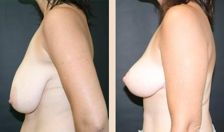 COSMETIC SURGERY - BREAST REDUCTION & UPLIFT