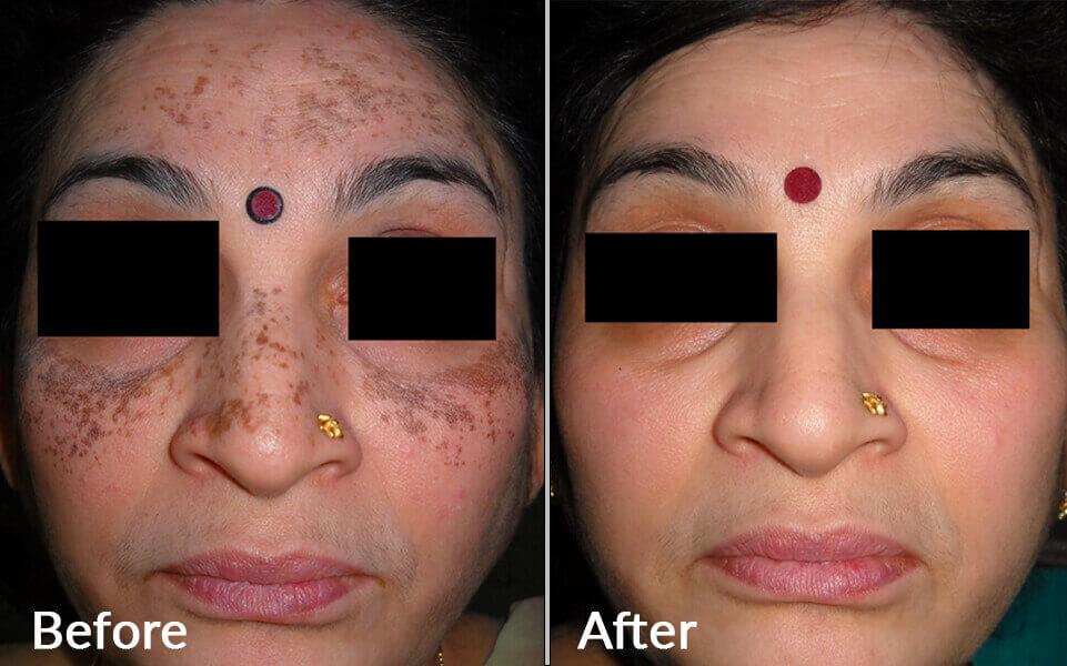 RESIDUAL PIGMENTATION OF VITILIGO TREATMENT