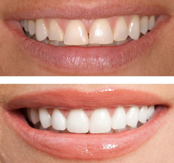 Cosmetic Dentistry in Mulund.