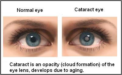 CATARACT SICS WITH NON FOLDABLE LENS