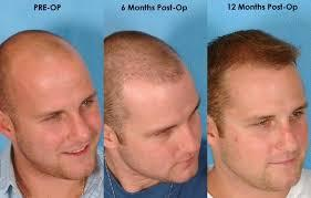 Rejoice Hair Transplant In Mumbai We Are RejoiceTM One Of The Best