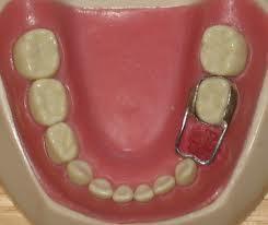 Composite Fillings Procedure