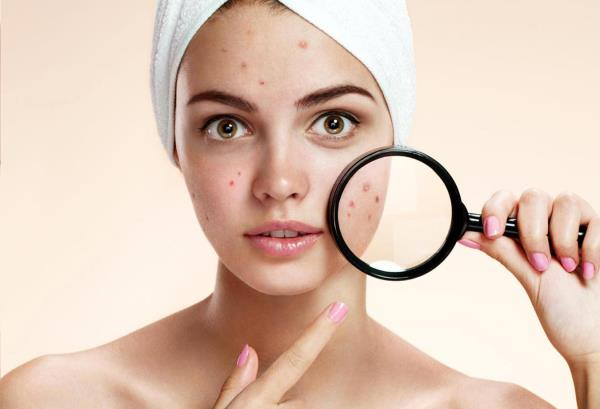At Signature Skin we are devoted to rendering your skin clear! Whether it is mild or severe acne, our treatment protocols help you to achieve acne free skin. Besides our medical advice and therapy, we have specific laser treatments for acne including the IPL system and the medical facials. Both of which target the various mechanisms, which lead to acne formation. When the acne clears, the body tries to repair the skin with collagen formation- too little or too much of it produces a depressed or raised scar. We treat acne scars with Nano-fractional Radio Frequency technology, which resurfaces the skin with enhanced effectiveness and patient comfort. There is very little or practically no down time and visible results are seen after 3-5 sessions.
