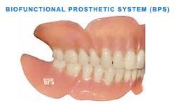 Biofunctional Prosthetic System ceramic dental