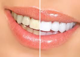 Tooth Whitening at D