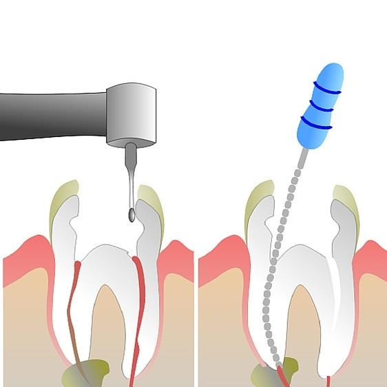 ROOT CANAL ROTARY TREATMENT