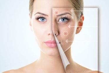 Skin/Acne Problems