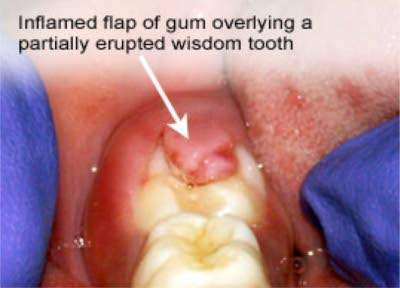 WISDOM TOOTH PAIN MANAGEMENT