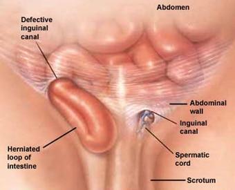 Hole pimple near anus Pimple on